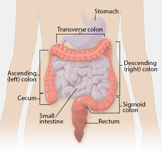 Colorectal Cancer Informational graphic